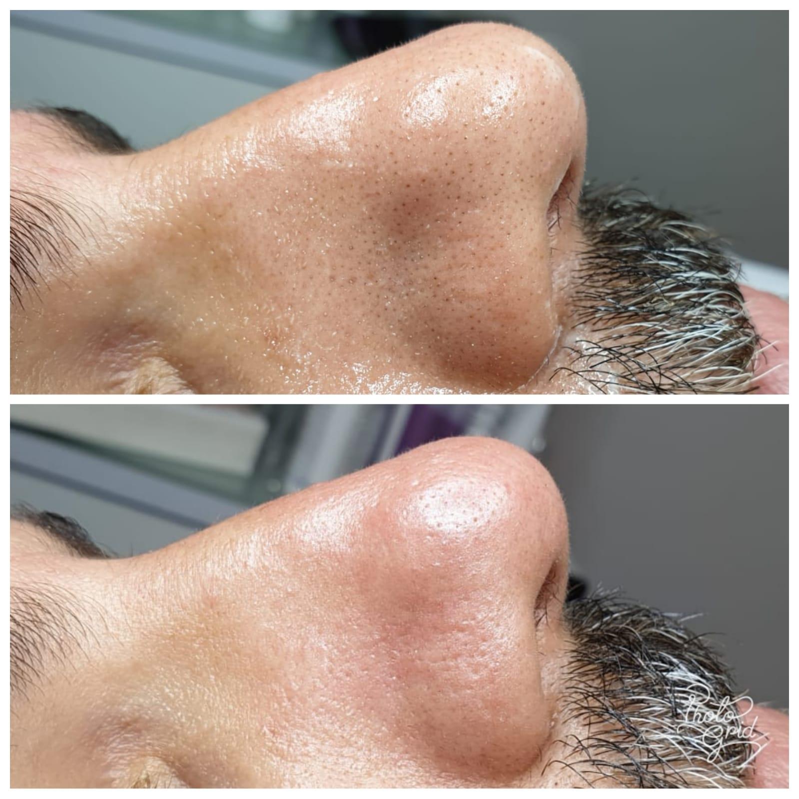 טיפול פנים גבר